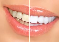 sbiancamento-denti-mascherine