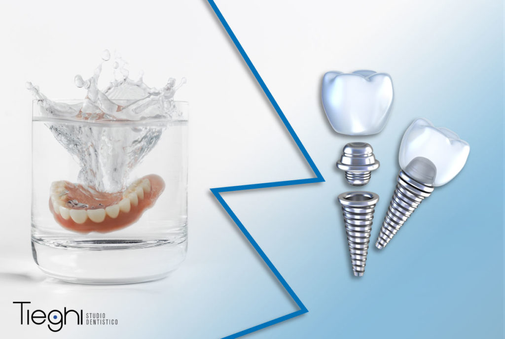 impianti dentali 3