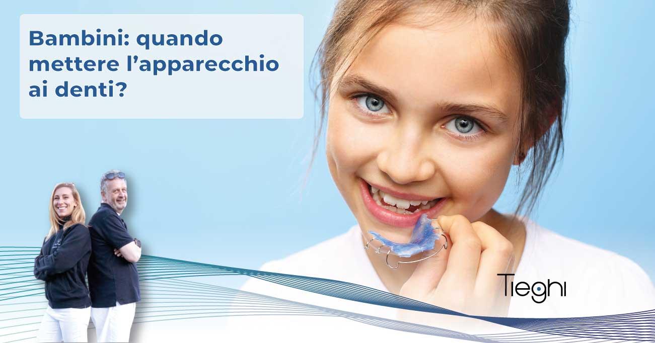 quando mettere apparecchio denti bambini
